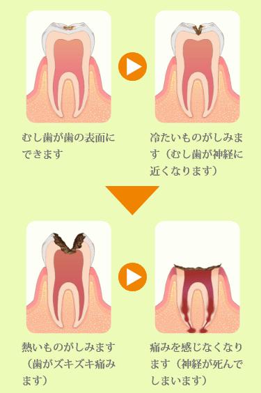 むし歯はこうして進行します